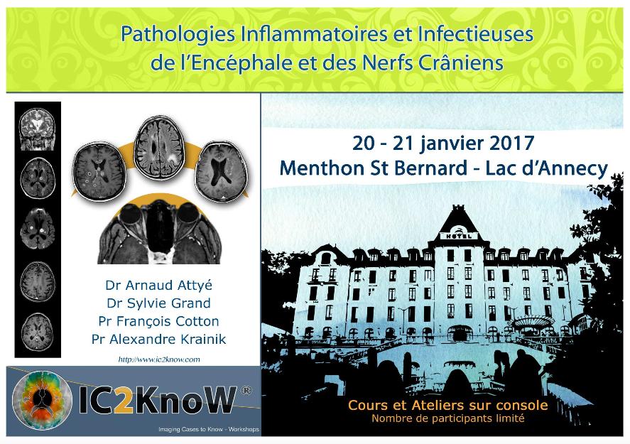 Prochain IC2KnoW à Menthon St Bernard: Maladies Inflammatoires et Infectieuses de l'Encephale et des Nerfs Craniens